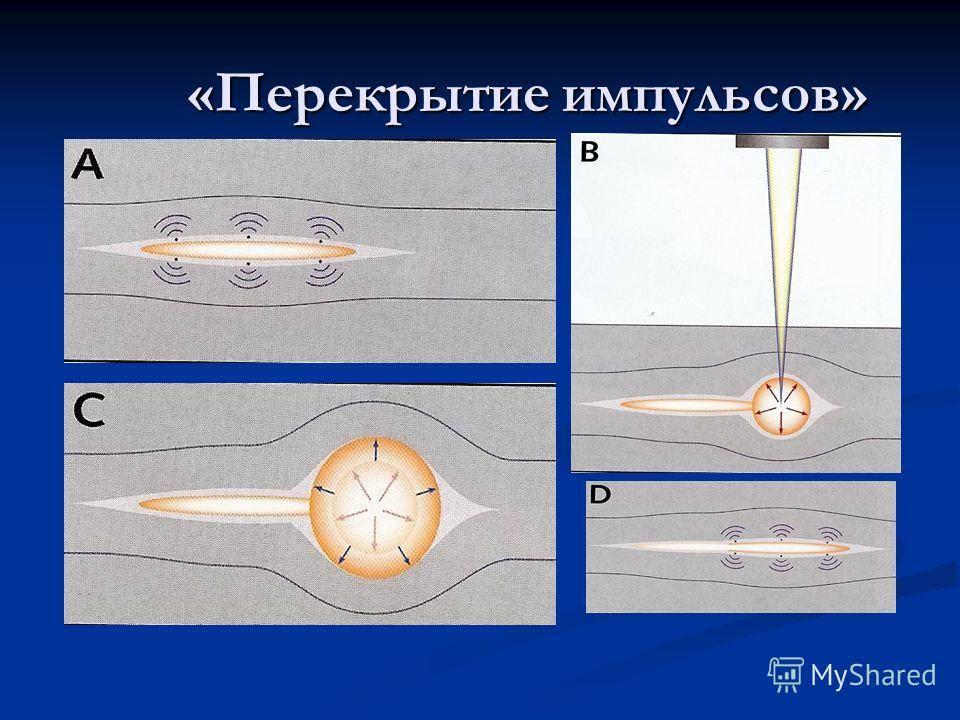 Рефракционные операции, проводимые с помощью фемтосекундного лазера
