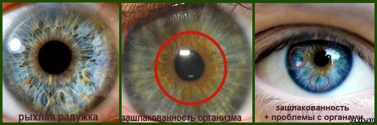 О чем расскажут пятна на глазных яблоках: виды, болезни и лечение