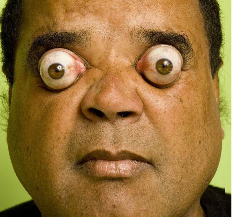 """Глаза """"вылезают из орбит"""": пучеглазие (экзофтальм) или физиологическая особенность"""