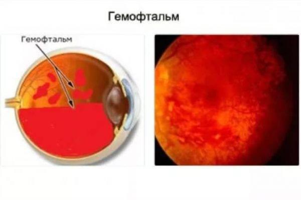 Гемофтальм глаза: причины и лечение частичной патологии
