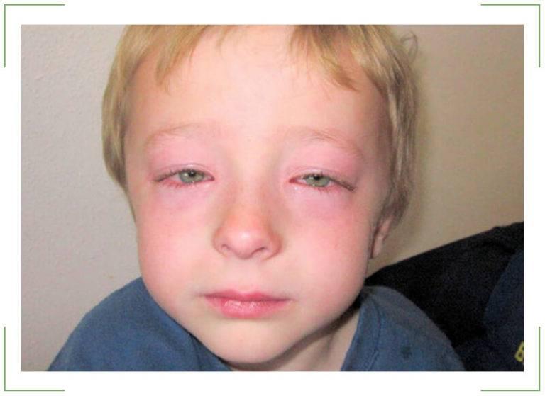 У ребенка опух глаз: причины, что делать, если у малыша заплыл глаз и покраснели веки
