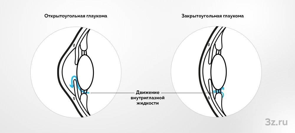 Симптомы и лечение закрытоугольной и открытоугольной глаукомы