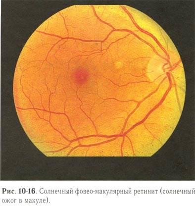 Воспаление сетчатки глаза симптомы лечение. ретинит: причины, признаки, методы лечения