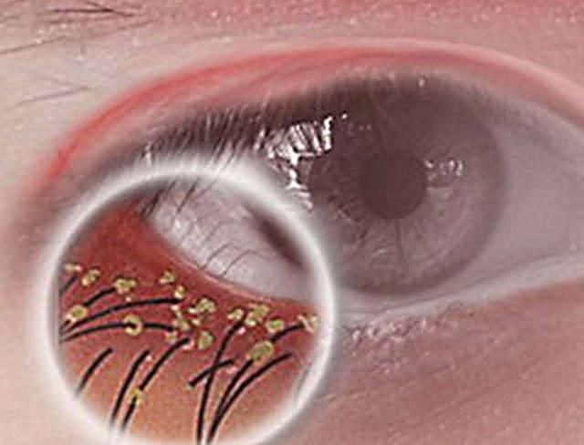 Блефароконъюнктивит: что это такое, виды (аллергический, демодекозный и другие), симптомы, лечение и прочие аспекты с фото
