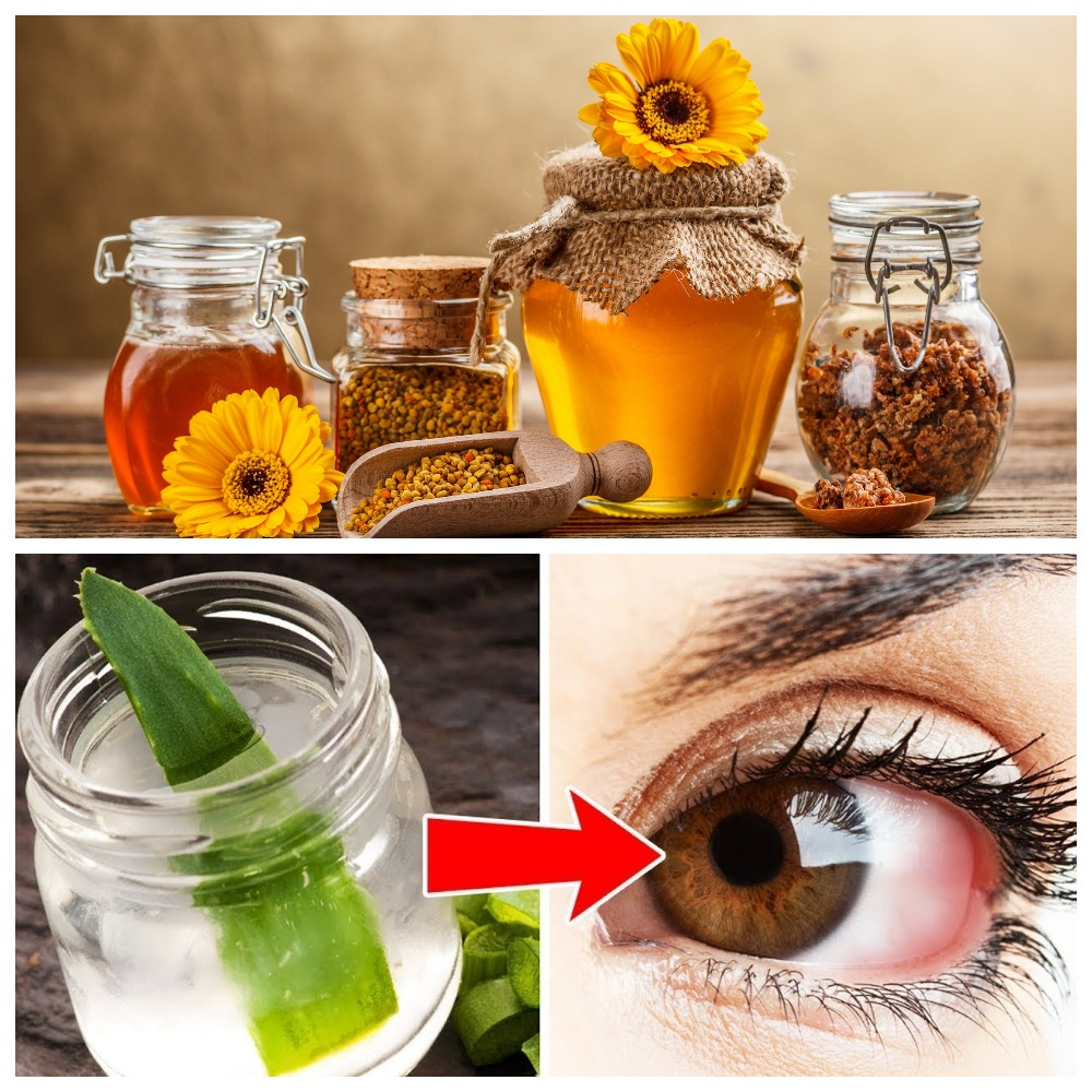 """Как вылечить катаракту народными средствами: советы, рецепты - """"здоровое око"""""""