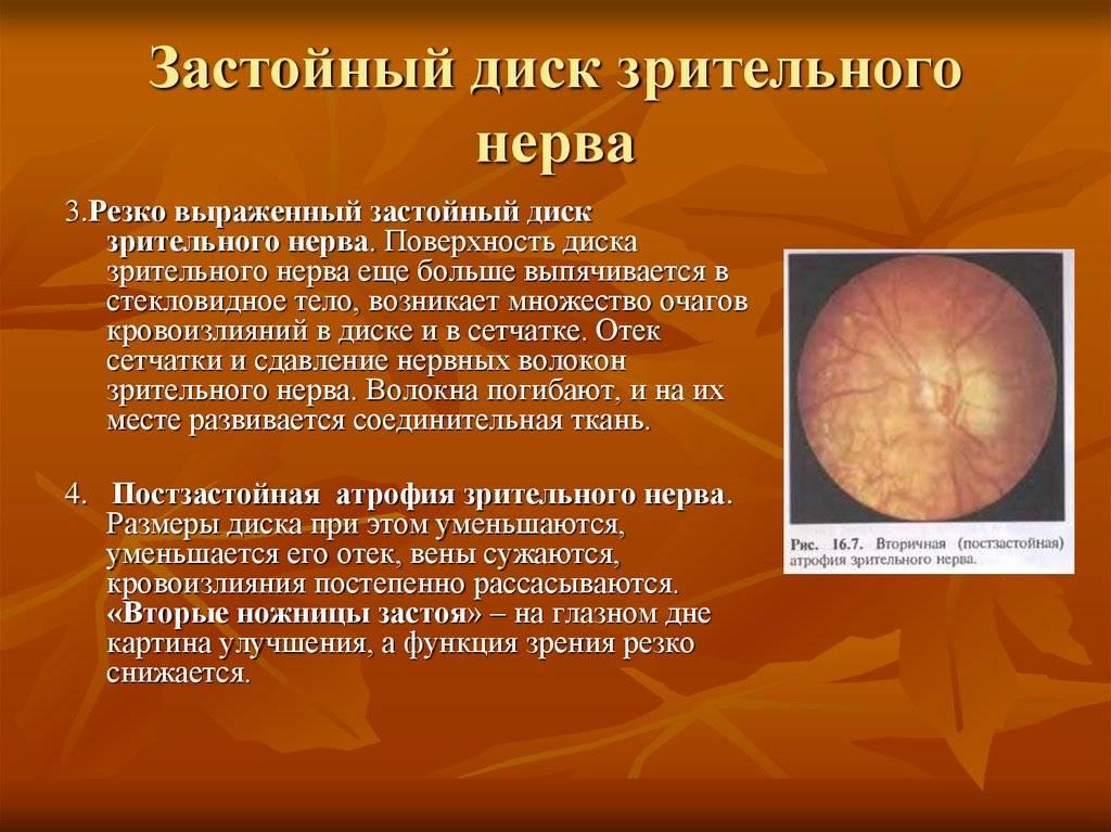 Застойный диск зрительного нерва: причины и лечение