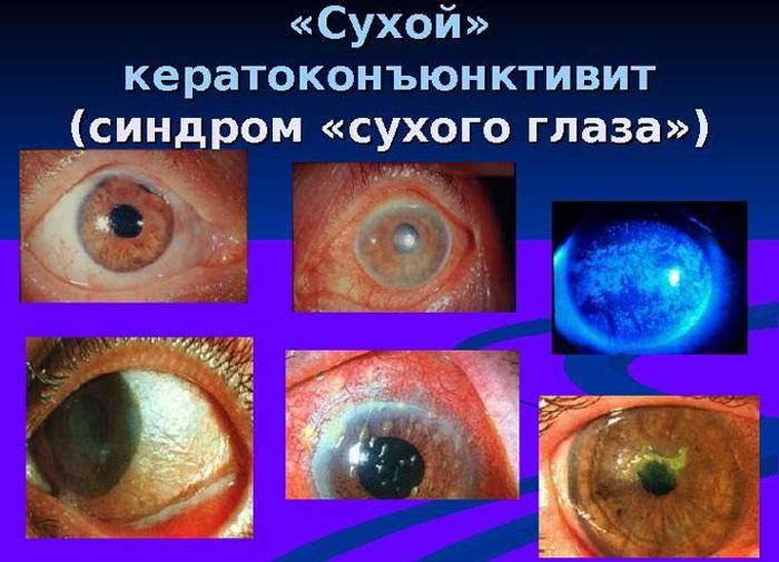 Кератопатия глаза и ее виды — причины, симптомы и лечение