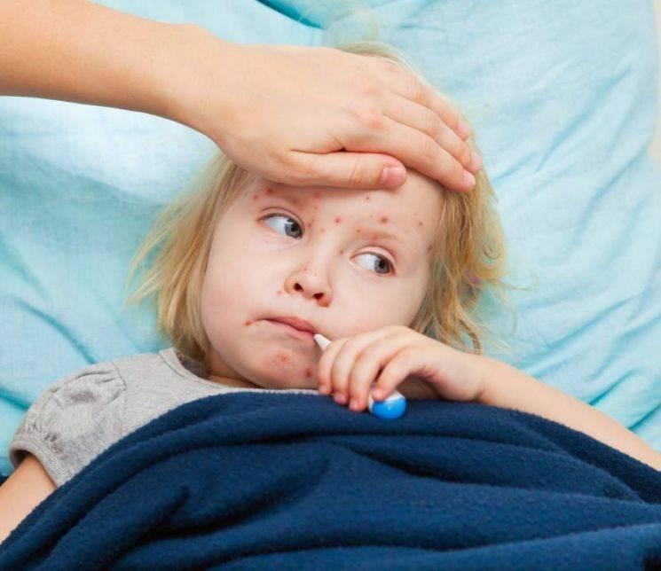 У ребенка светобоязнь глаз – причины, при каких заболеваниях у детей