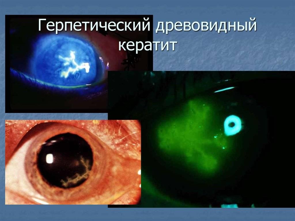 Герпетический кератит глаза: причины, симптомы, лечение oculistic.ru герпетический кератит глаза: причины, симптомы, лечение