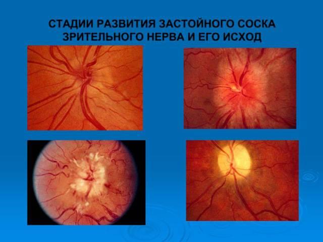 Неврит зрительного нерва: симптомы и лечение