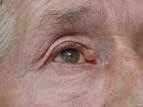 Рак глаза - симптомы и лечение