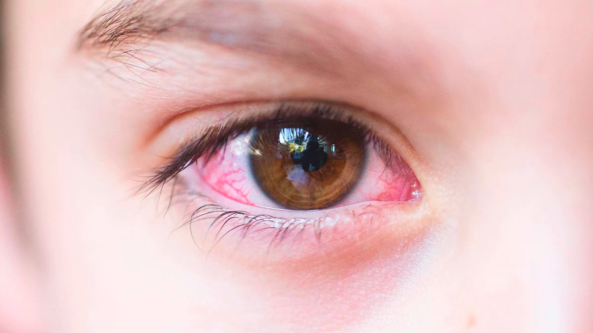 У ребенка покраснел белок глаза: причины возникновения точек, сосудов, пятен (в том числе у новорожденных) и рекомендации для родителей