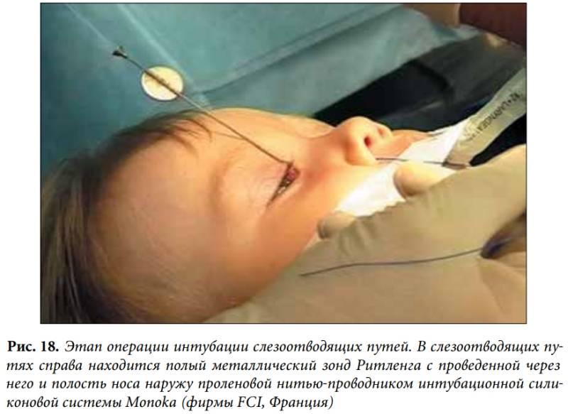 Дакриоцисториностомия: что это за операция, методы проведения лазером и эндоскопическая