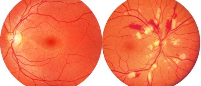 Сужение сосудов глазного дна: симптомы, лечение и причины проявления