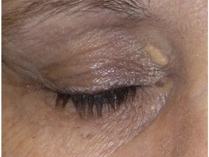Ксантелазма век - фото, причины желтых пятен, лечение