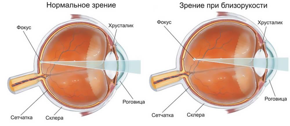 Врожденная близорукость (миопия) у детей: симптомы и лечение. клиники. консультация офтальмолога.