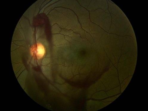 Понятие гемофтальма. клиническая картина кровоизлияния глаза.