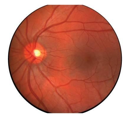Эпиретинальный фиброз глаз — откуда берётся проблема и есть ли эффективное лечение?