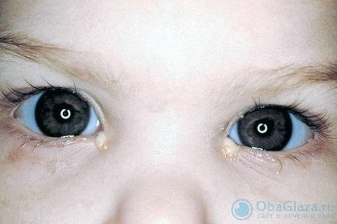 Выделения гноя из глаз по утрам или после сна