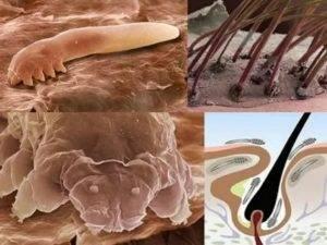 Ресничный клещ симптомы и лечение. клещ демодекс на лице лечение народными средствами.