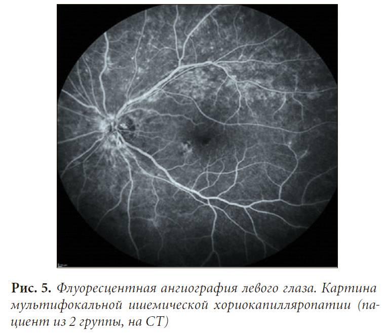 Цены на флуоресцентную ангиографию сетчатки в клиниках москвы: сравнение