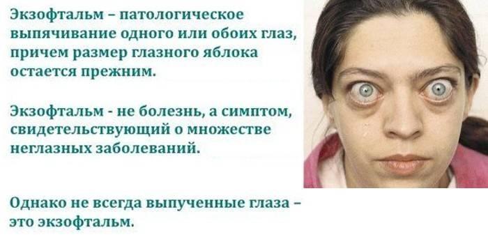 """Пучеглазие (экзофтальм): как лечить - """"здоровое око"""""""