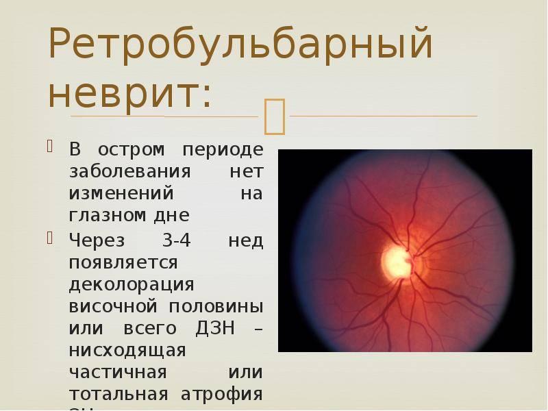 Застойный диск зрительного нерва, отек глазного нерва и псевдозастой