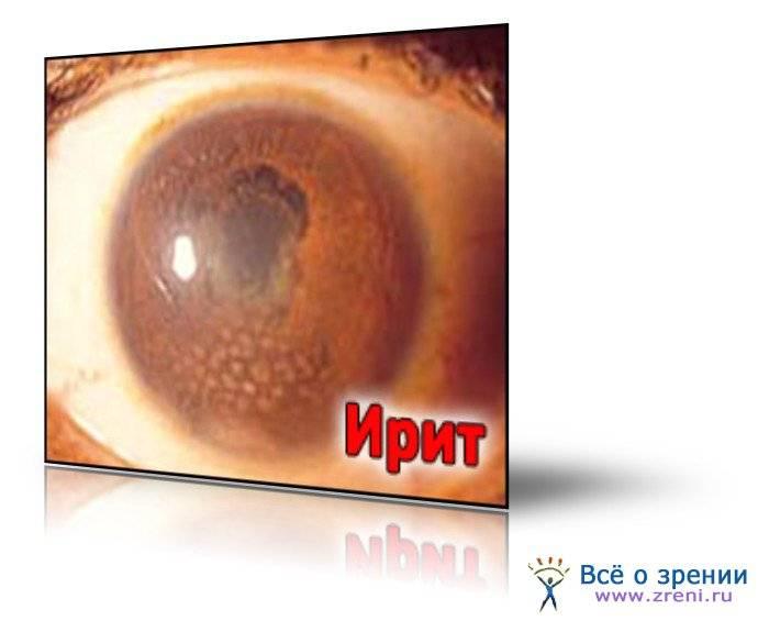 Ирит глаза: симптомы и лечение, причины, как лечить ирит у ребенка