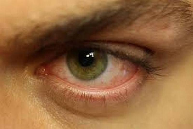 Почему после сна красные глаза
