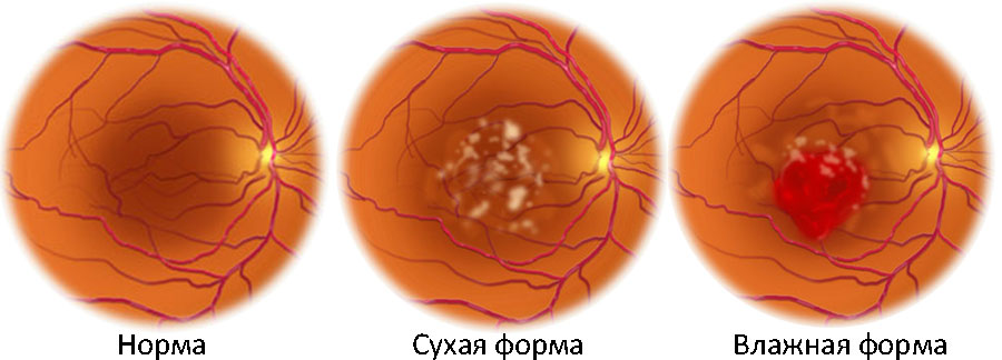 """Макулодистрофия сетчатки глаза: причины, лечение - """"здоровое око"""""""