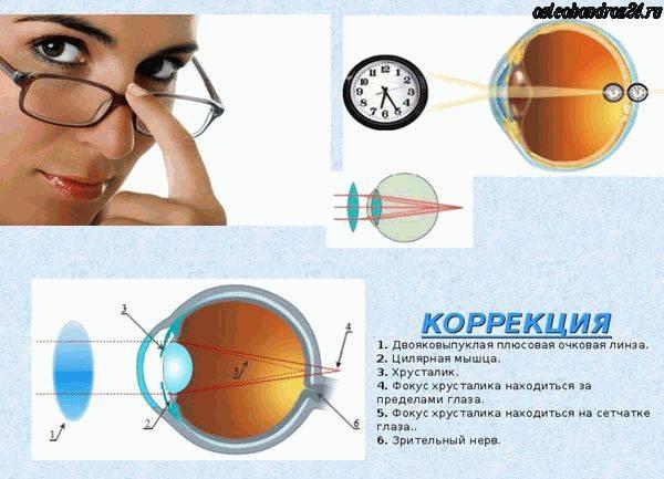 Как делают операции на глазах при дальнозоркости - сколько стоит коррекция гиперметропии лазером, лечение при возрастной пресбиопии