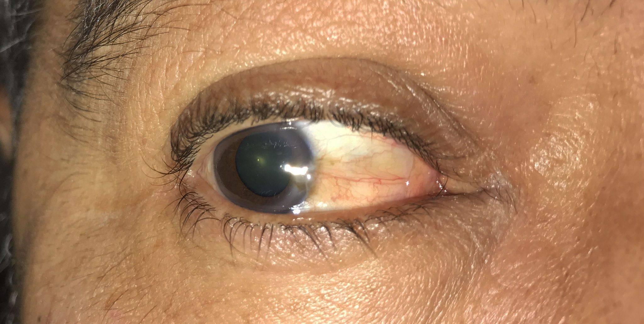 Птеригиум в глазу: что это такое, причины, симптомы, фото, лечение