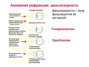 Рефракция и патология рефракции