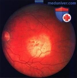 Невус хориоидеи на глазу – виды, симптомы и лечение (фото)