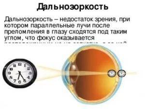 Дальнозоркость — как подобрать очки