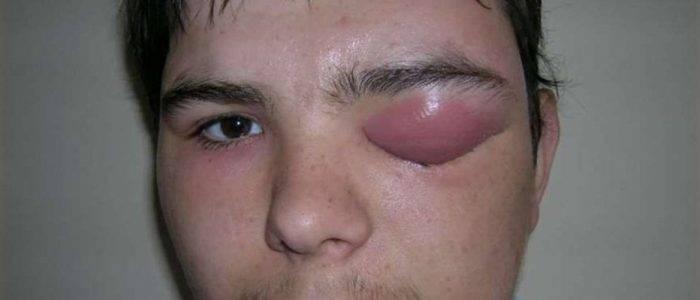 Флегмона орбиты глаза: лечение, симптомы, профилактика