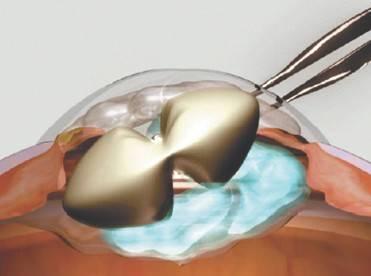 Причины, обуславливающие невозможность производить детям интракапсулярную экстракцию катаракты.