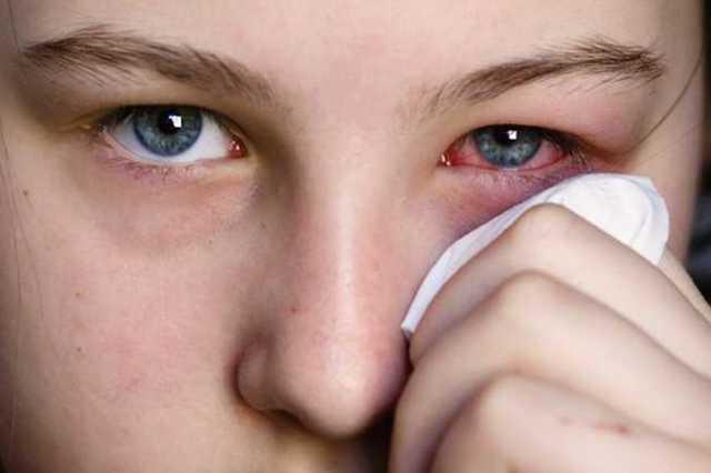 Почему слезится один глаз - причины и лечение