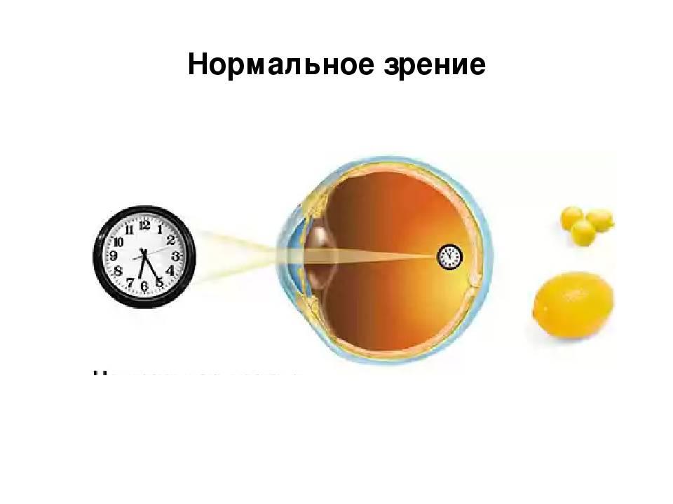 Зрение единица 1,0: что это значит, как видит человек oculistic.ru зрение единица 1,0: что это значит, как видит человек