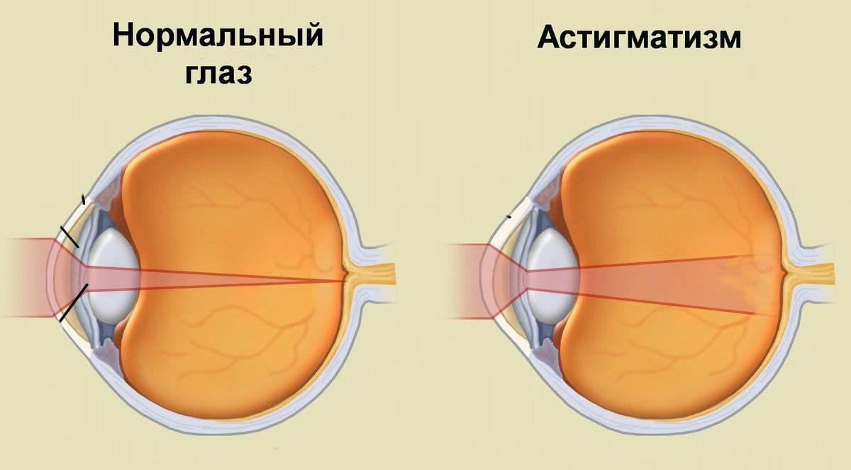 Астигматизм: симптомы у взрослых, причины, лечение (очки, линзы, народные средства), виды, степени, диагностика, профилактика, последствия