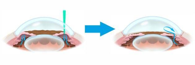 Лазерная иридэктомия: преимущества и недостатки - здоровое око