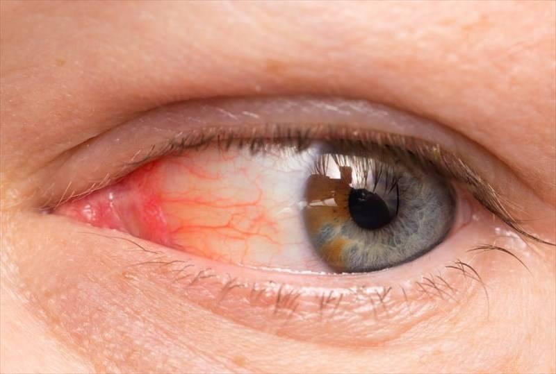 """Почему лопаются сосуды в глазах и что делать, """"здоровое око"""""""