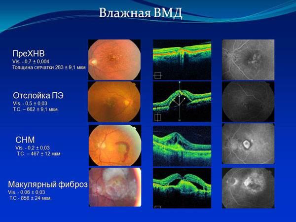 Макулярная дистрофия сетчатки глаза: лечение и диагностика