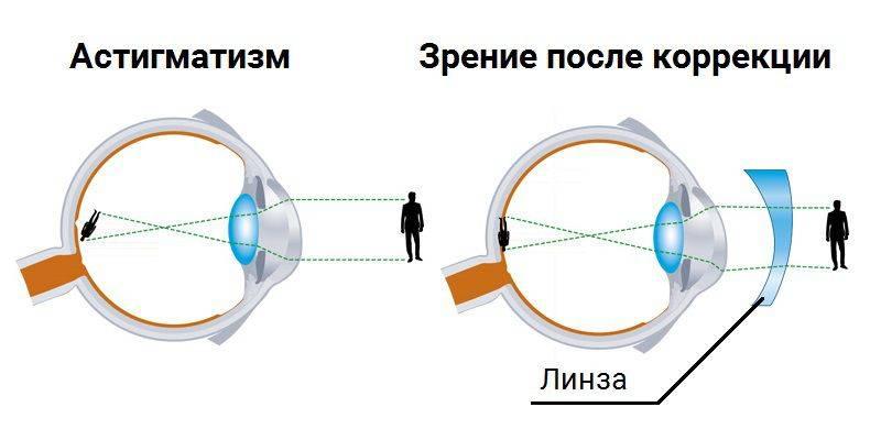 Астигматические контактные линзы, как подобрать – виды и особенности