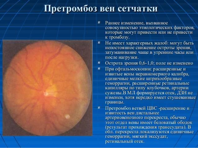 Насколько опасен тромбоз центральной вены сетчатки?