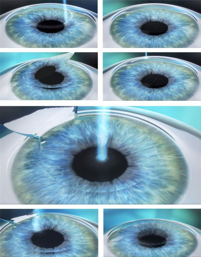 Ограничения после лазерной операции на глаз