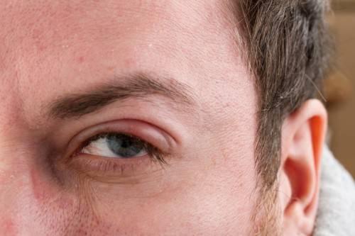 Лечение ячменя на глазу медикаментами: лучшие капли, таблетки и мази в 2020 году