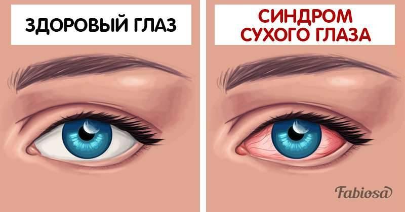 9 причин, по которым могут болеть глаза при ношении линз и неправильной их эксплуатации