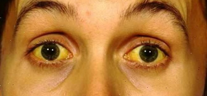 Жёлтые белки глаз у новорождённых: причины, лечение, последствия oculistic.ru жёлтые белки глаз у новорождённых: причины, лечение, последствия