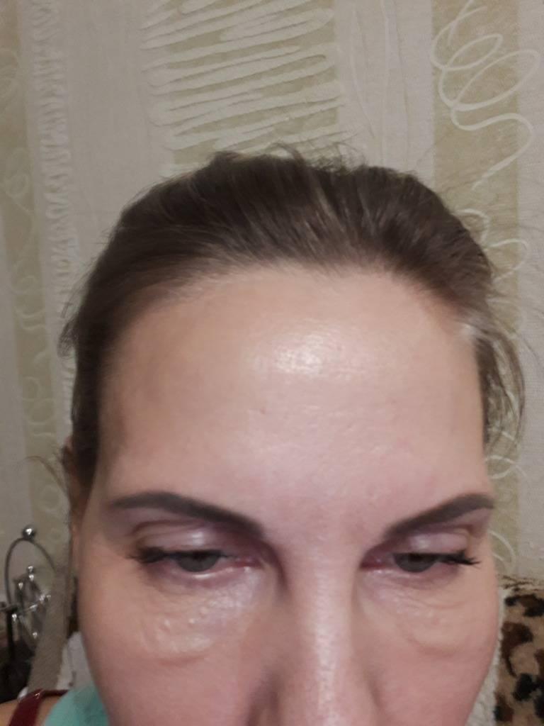 Отеки после биоревитализации глаз: мешки под глазами, синяк